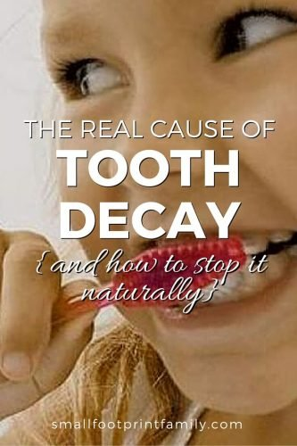The Real Cause of Tooth Decay {and How to Stop it Naturally}